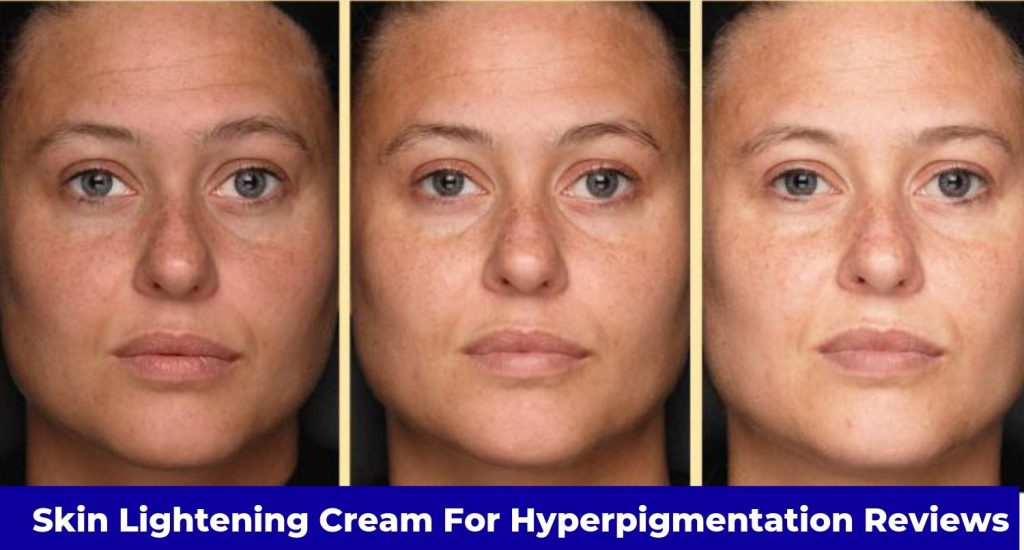 best skin lightening cream for hyperpigmentation